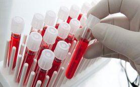 Люди с 4 группой крови больше всего рискуют получить инфаркт или другие болезни сердца