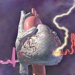 Ишемическая болезнь сердца чаще всего передается по наследству