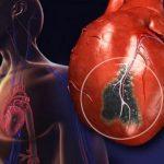 Новый метод поможет предсказать инфаркт