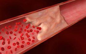 Ривароксабан превзошел по эффективности аспирин в профилактике венозной тромбоэмболии