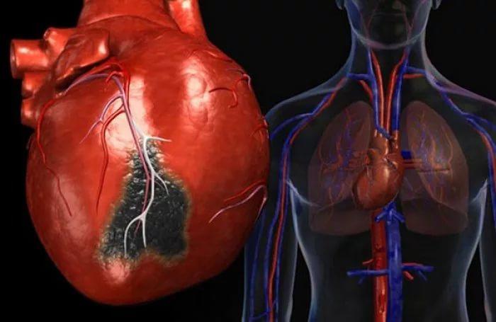 Кардиологи нашли способ за две недели предсказать инфаркт