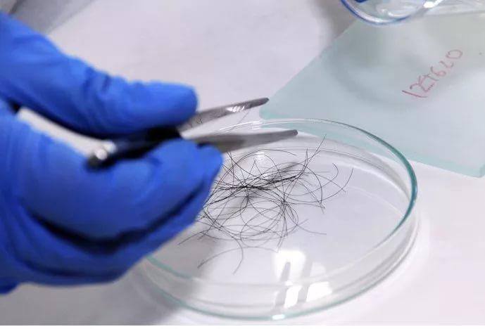 Анализ волос покажет риск возникновения инфаркта миокарда