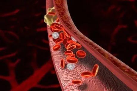 Главные симптомы тромбоза: не пропустите!