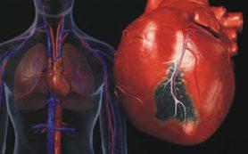 Найден новый метод клеточной терапии инфаркта миокарда