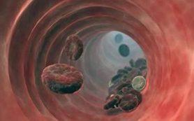 Мужчины больше предрасположены к повторному образованию тромбов