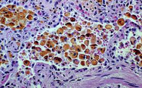Влияние возраста и болезни на функцию стволовых клеток сердца