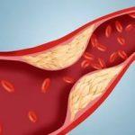 10 натуральных средств для профилактики и лечения атеросклероза
