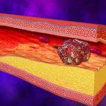 Курение повышает риск тромбоза — ученые