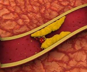 Природное средство, которое понижает уровень холестерина и очищает кровеносные сосуды