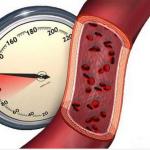 Какие продукты помогут снизить артериальное давление