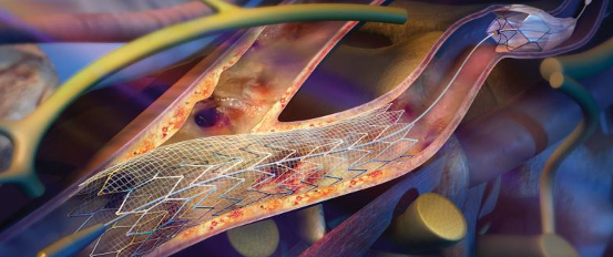 Шунтирование и лечение стеноза церебральной артерий