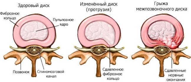 Дефанотерапия: лечим протрузию межпозвонкового диска правильно