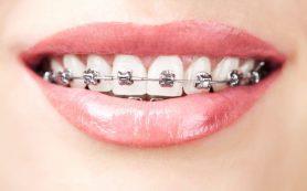 Какой способ выравнивания зубов выбрать