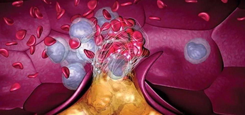 Ученые: процесс формирования новых сосудов можно превратить в спасение от болезней