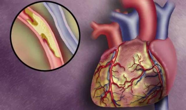 Острая коронарная недостаточность: спасайте сердце немедленно