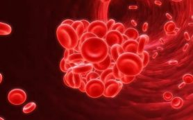 Ненадлежащее профилактическое лечение приводит к образованию кровяных тромбов после операции