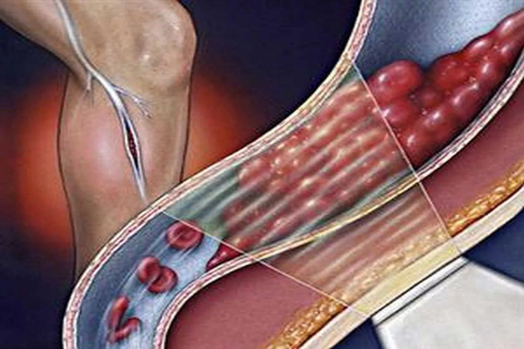 Признаки тромбофлебита, его лечение и профилактика