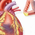 Стенокардия напряжения – типичное проявление ишемической болезни