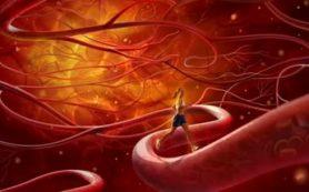 В жару определенная группа людей подвержена риску кровоизлияния в мозг
