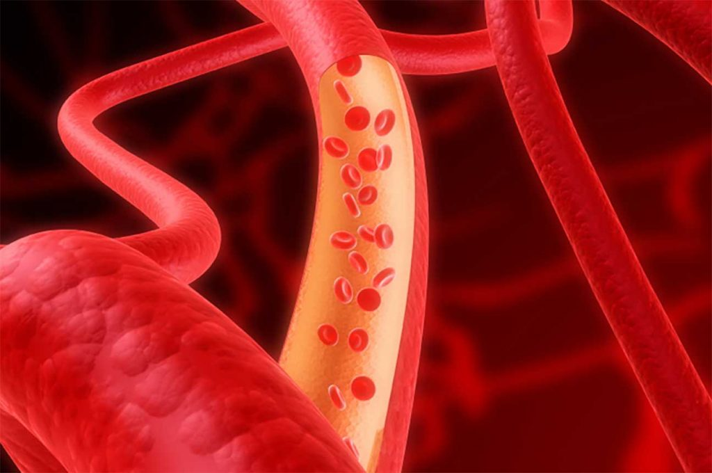 Предотвратить инсульт, помогут травы и иглорефлексотерапия