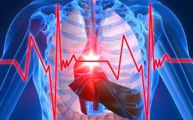 Электрический приказ сердцу