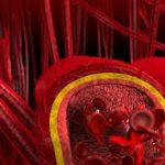 В Кирово-Чепецке будут производить искусственные кровеносные сосуды