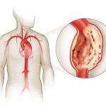 У пациентов с СД2 реже встречается аневризма аорты