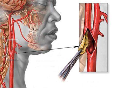 Предложен новый метод лечения «правых» патологий сердца