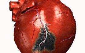 Яблоко в день защитит от инфаркта