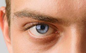 Глаукома — симптоматика и виды заболевания