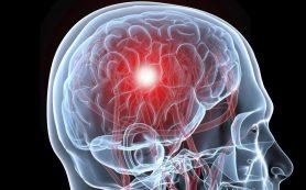 Ученые обнаружили механизм мерцательной аритмии