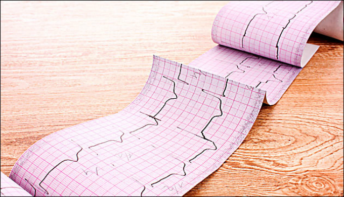 Рекомендации по патологии периферических артерий