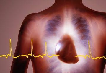 Что может вызвать внезапную остановку сердца?