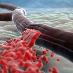 Риск кровотечений на фоне аспирина у пожилых пациентов