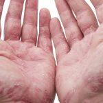 У пациентов с псориазом нестабильные атеросклеротические бляшки образуются чаще и раньше