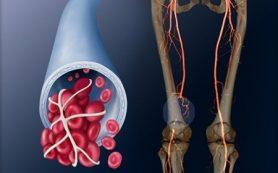 Лечение венозной тромбоэмболии должно быть индивидуализированным