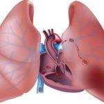 Индийские кардиологи представили метод удаления блокады сосудов