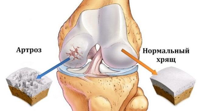 Боль в коленях: причины