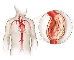 Последствия и восстановление после операции аневризмы сосудов головного мозга