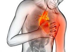 Функциональный класс стабильной стенокардии напряжения