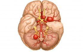 Классификация сосудистых заболеваний головного мозга