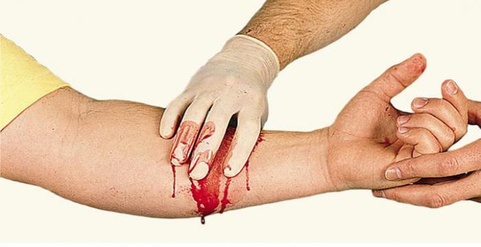 Кровотечения