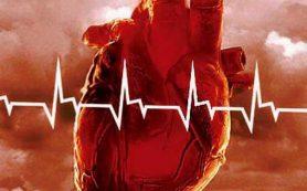 Дилатационная (застойная) кардиомиопатия