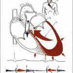 Функциональный диастолический шум Флинта