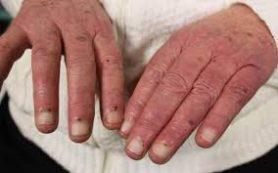 Симптомы эндокардита