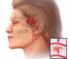 Аневризма. Методы лечения болезни