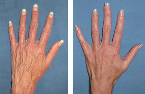 Методы лечения атеросклероза рук