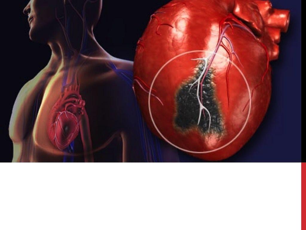 Как определить надвигающийся инфаркт миокарда?