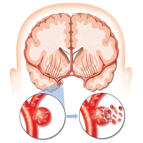 Разрыв аневризмы сосудов головного мозга и его последствия