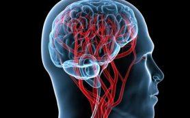 Атеросклеротические повреждения сосудов головного мозга